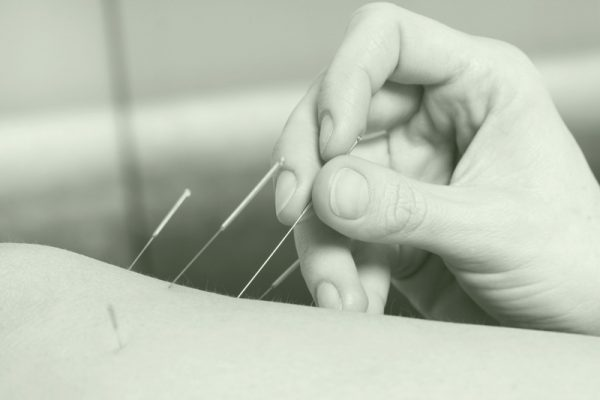 Acupuncture: The Positive Effects of Needles!