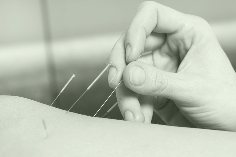 acupuncture needles pain treatment