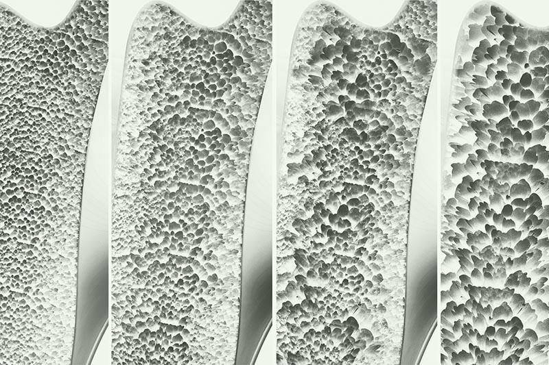 osteoporosis bone examples